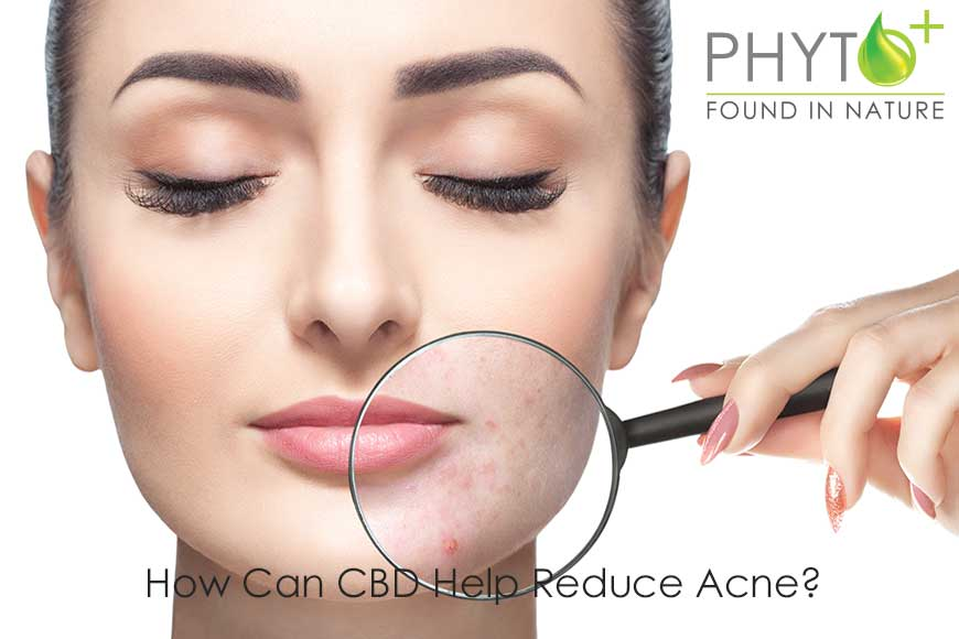 How Can CBD Help Reduce Acne?